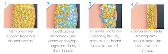 What Are Coolsculpting Results Like?