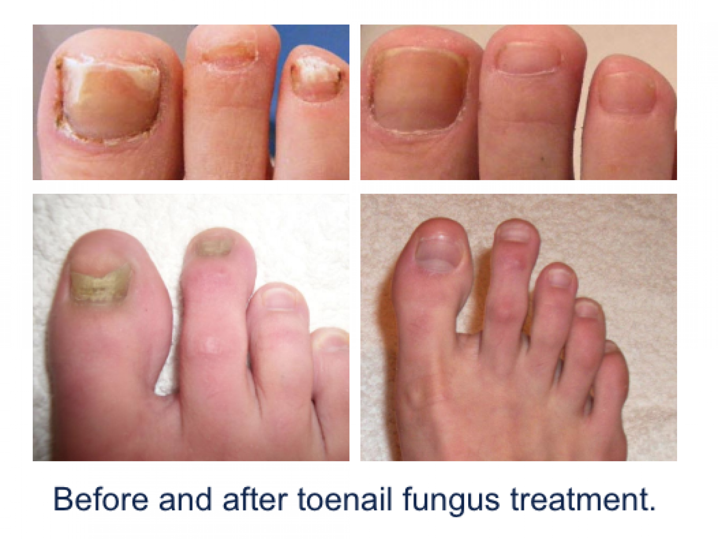 There are several different types of nail fungus infections.
