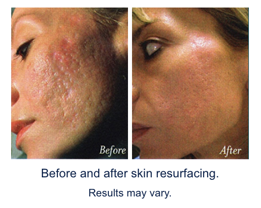 Erbium YAG Laser treatments are highly effective for: