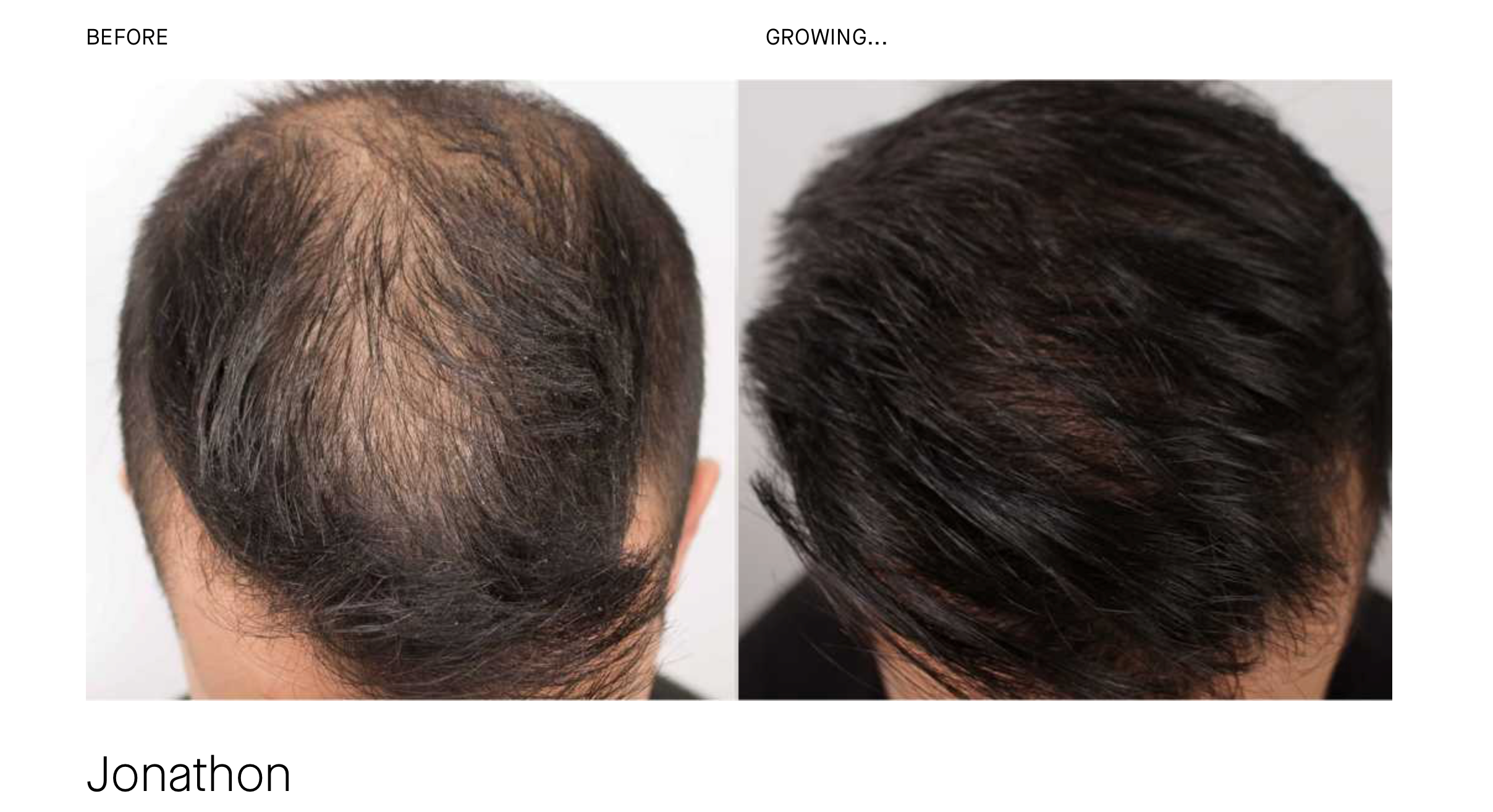 hair growth treatments el paso tx